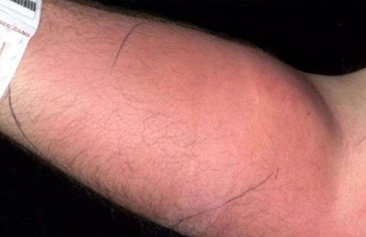 Un hombre tuvo que pasar por una intervención quirúrgica luego de inyectarse su propio semen en el brazo varias veces para tratar su dolor de espalda.