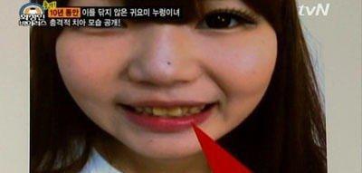 這名少女10年沒刷過牙齒,當她把嘴巴張開後…牙醫超想呼她巴掌!