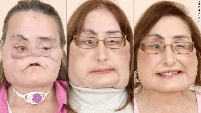More than two years after undergoing a landmark, near-total face transplant at the Cleveland Clinic, Connie Culp said she was happy with the transformation.