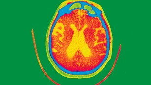 Despite failed trials, experts believe we'll have an Alzheimer's drug by 2025