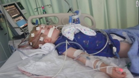 What is the polio-like illness paralyzing US children?