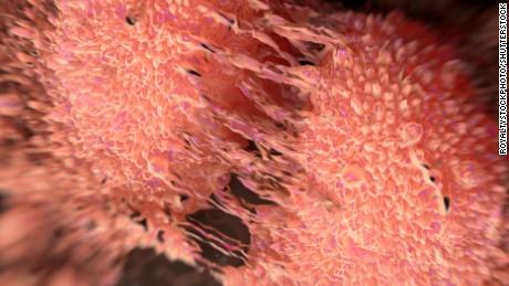 Prostatakrebs tötet jetzt in Großbritannien mehr als Brustkrebs