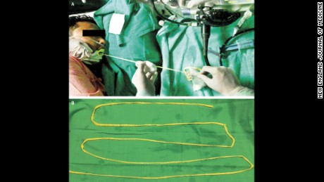 Doctors remove 6-foot tapeworm through man's mouth