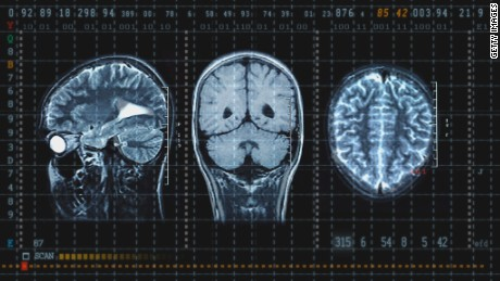 Image result for concussion rugby xray