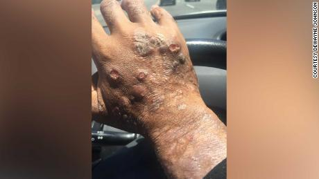 Johnson had lesions on most of his body, a doctor said.