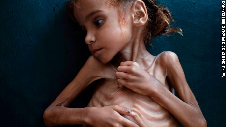 The hungry girl dies and has become the symbol of the Yemen crisis