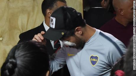 Pablo Perez of Boca Juniors was wearing a bandage over his left eye when he came back to the stadium.