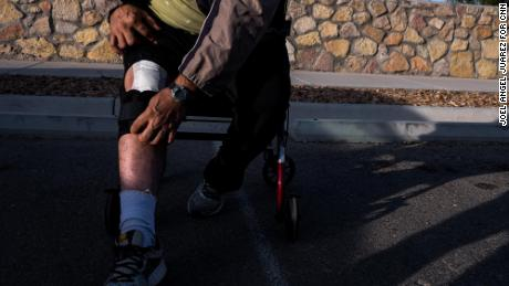 Rascon, 56, is recovering from a knee replacement after he injured himself while fleeing the gunfire.
