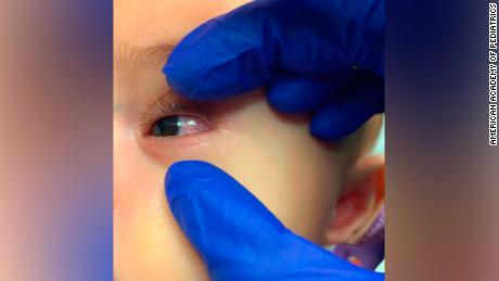 CDC warns doctors about childhood illnesses linked to Covid-19