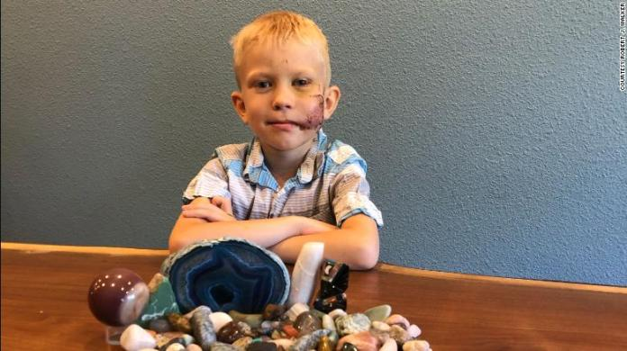 Bridger Walker, 6, saved his sister from a dog attack.