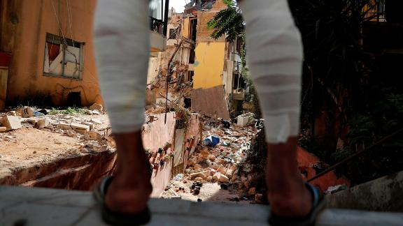 A man whose legs were injured because of the explosion looks at a destroyed house on August 7, 2020.