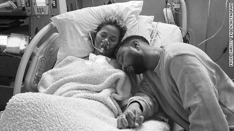Chrissy Teigen breaks a long-standing culture of silence by sharing her loss