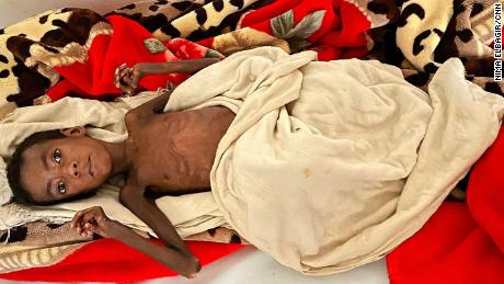 Seven-year-old Latebrahan lies on a gurney at Axum University Teaching and Referral Hospital, where she's being treated for malnourishment.
