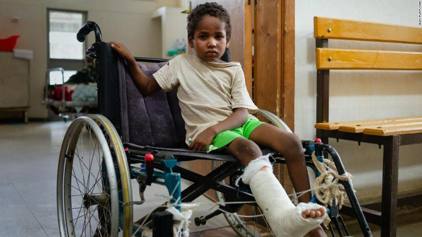 Hannibal, 7, is treated at Axum Teaching and Referral Hospital for a gunshot wound to the leg, which he received from soldiers' gunfire as he was sitting on his mother's lap.