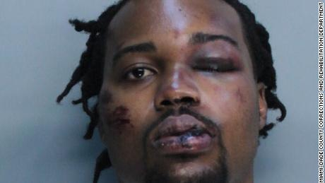 Francois Alexandre's injuries are seen in a mugshot taken after he was arrested. Charges against him were later dropped.