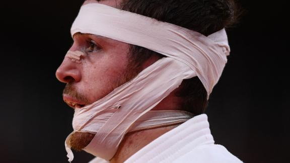 Spanish judoka Alberto Gaitero Martin is bandaged during his bout against Ukraine's Georgii Zantaraia on July 25.