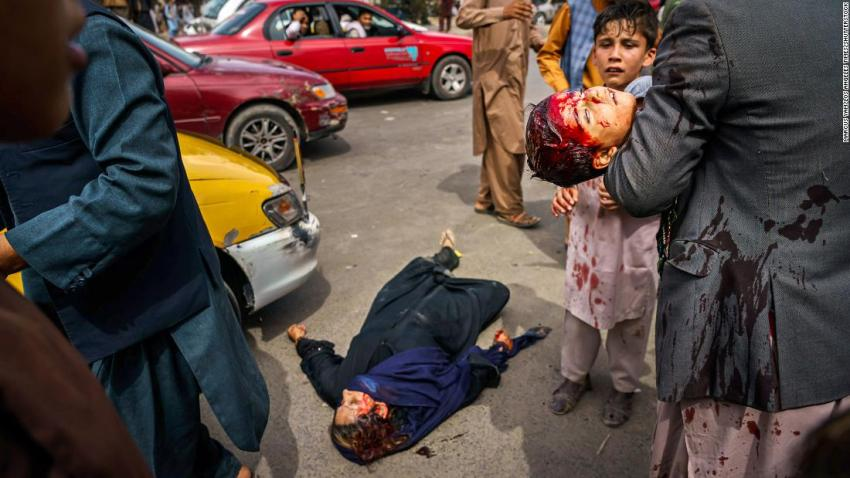"""A man carries a bloodied child as a wounded woman lies on the street after Taliban fighters fired guns and lashed out with whips and other objects to control a crowd outside the airport in Kabul on August 17. """"The violence was indiscriminate,"""" <a href=""""https://twitter.com/AC360/status/1427797623105327115"""" target=""""_blank"""">Los Angeles Times photographer Marcus Yam told CNN.</a> """"I even watched one Taliban fighter, after firing some shots in the general direction of the crowd, smiling at another Taliban fighter — as though it were a game to them or something."""""""