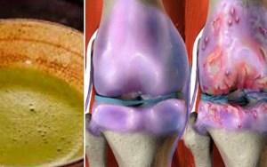 Esta receita está a dar a volta ao mundo! Ela cura os joelhos e restaura os ossos e articulações rapidamente!
