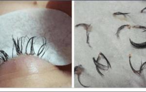 Esteticista alerta sobre o perigo das extensões de cílios.Veja o que aconteceu