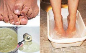 Como obter alívio da dor no calcanhar naturalmente