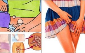Especial para as mulheres: este remédio elimina fungos, bactérias, corrimento e mau odor
