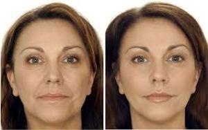 Máscara Caseira Para Prevenir Rugas