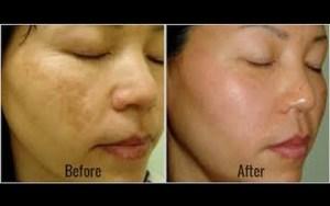 Os remédios mais eficientes para remover manchas marrons em seu rosto naturalmente