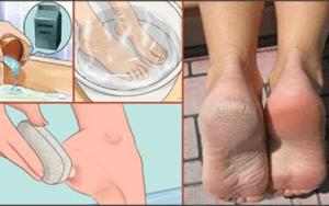 Não gaste seu dinheiro em pedicure: com apenas dois ingredientes de sua cozinha seus pés vão ficar incríveis!