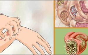 19 sinais que parasitas estão em seu corpo - estas ervas podem ajudá-los a destruí-los