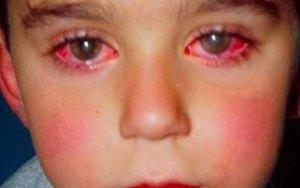 Criança perde 75% da visão por causa de um brinquedo muito comum que temos em casa.