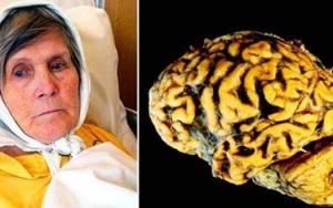 Como evitar a perda da memória e o mal de Alzheimer fazendo este exercício todas as noites antes de dormir Leia mais em