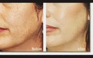 Receita caseira Como clarear a pele do rosto, sardas, melasma, manchas de acne e queimaduras