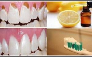 Previne e proteja seus dentes,deixe seus dentes brancos com apenas 1 ingrediente