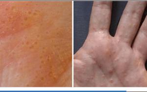 Estas bolinhas nas mãos ou pés são sinal de um problema de pele. Veja como tratar!