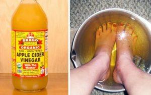 Mergulhe seus pés no vinagre de maçã, os resultados irão surpreender você!