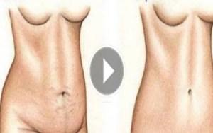 Redução do abdomem em apenas 4 dias