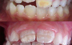 Seu filho possui manchas nos dentes?Entenda o significado