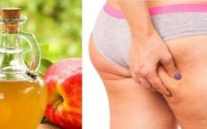 O vinagre de maçã ajuda a celulite desaparecer como mágica!