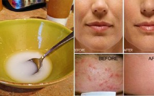 Diga adeus a rugas e flacidez da pele facial após lavá-lo com esta poderosa mistura!