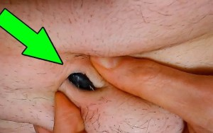 As 10 partes mais sujas do seu corpo