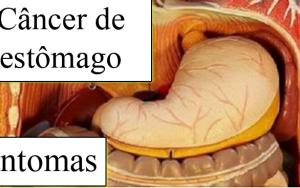 Aqui estão os sinais de câncer de estômago que você deve prestar atenção.