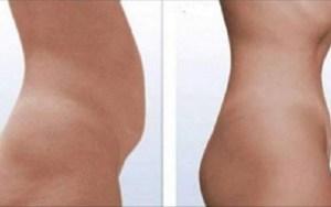 Fisioterapeuta cria método que está fazendo sucesso na Europa: seca barriga sem exercícios!