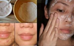 MÁSCARA SURPREENDENTE REMOVE manchas, cicatrizes, acne e rugas desde o primeiro uso, como mágica!