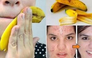 Você joga fora cascas de banana? Conheça 10 grandes utilidades delas!