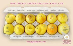Esta foto pode te dizer se você tem câncer de mama. Desde que ela foi postada na internet pela primeira vez, ela tem salvado muitas vidas.