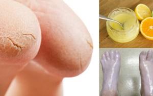 10 remédios caseiros para pés e calcanhar rachados