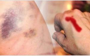 15 sinais de leucemia que são pouco conhecidos e, por isso, costumam ser ignorados pelas pessoas!