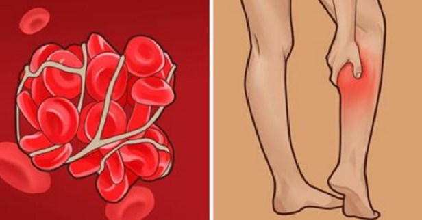 Image result for Blood Clot