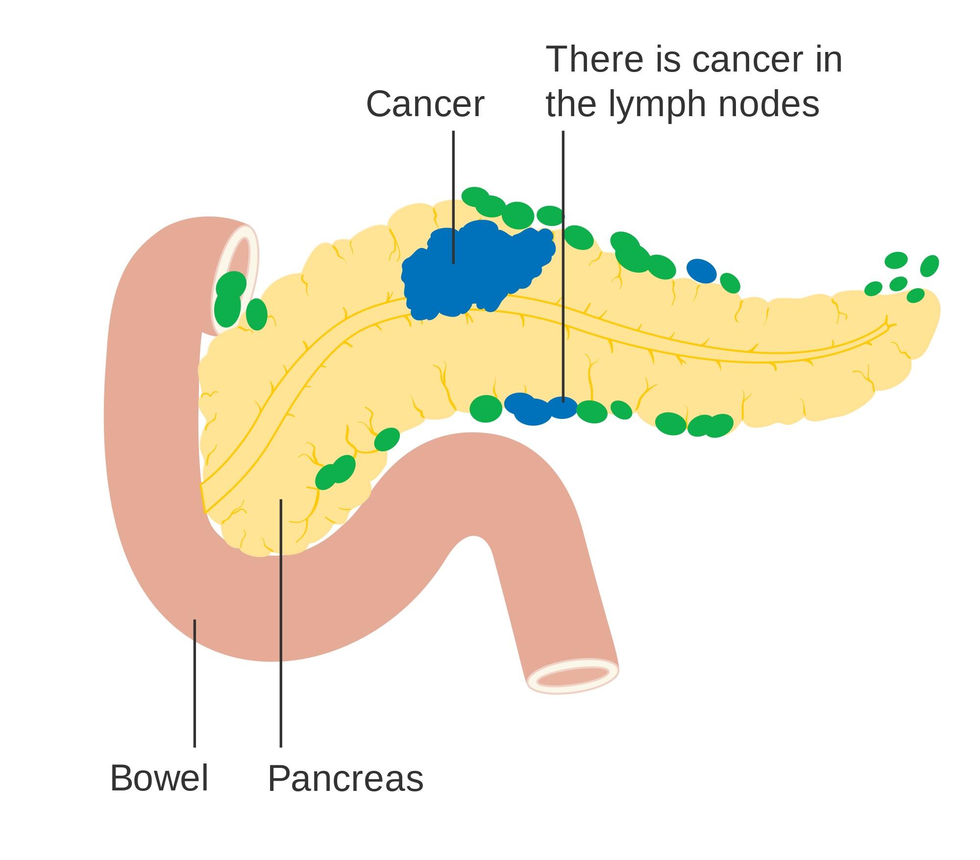 A Diabetes Diagnosis May Be First Symptom Of Pancreatic