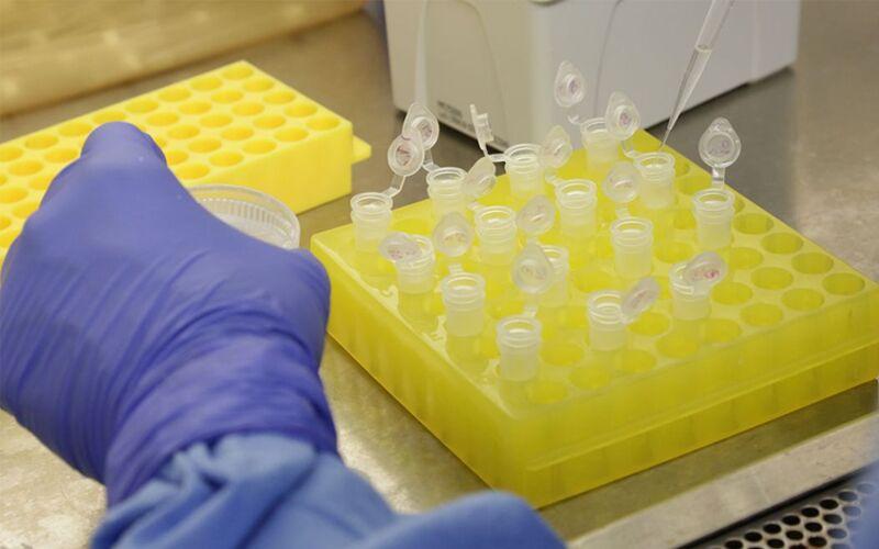 Mais dois casos de coronavírus foram registrados no Pará hoje.